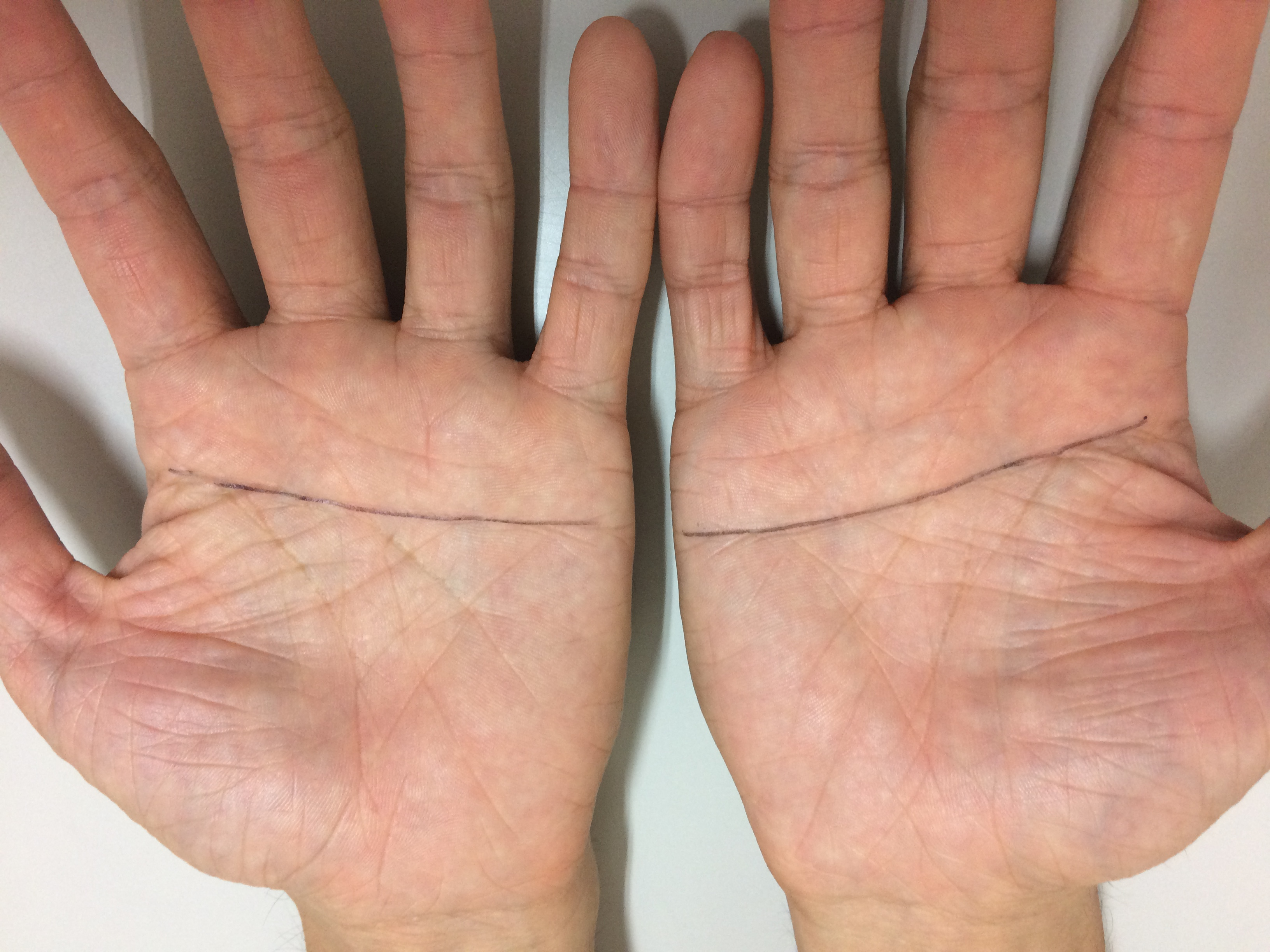握り の 手相 百